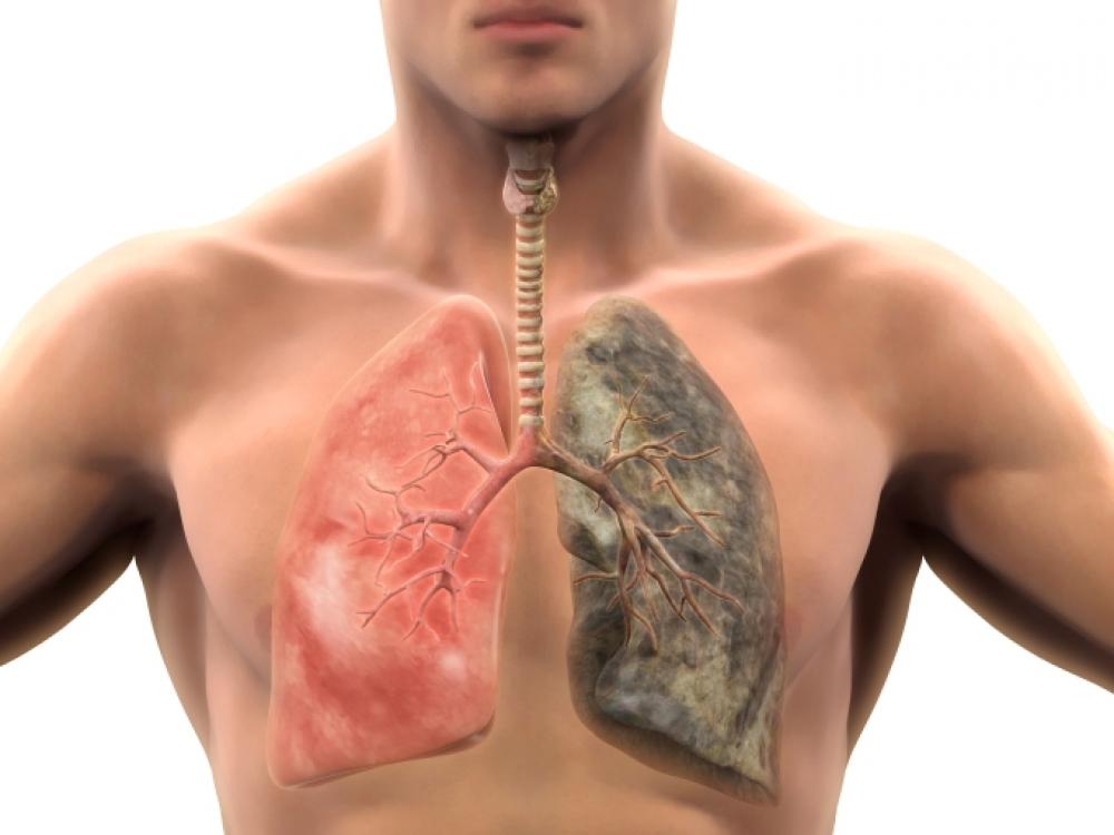 Lėtinė obstrukcinė plaučių liga - ingridasimonyte.lt